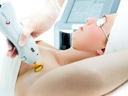 ¡Elimina los vellos indeseados! $99 por 5 Sesiones de depilación láser en 1 área a escoger entre axila o bikini